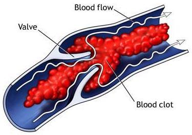 tromboza na venite