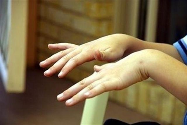 Треперенето издава здравословни проблеми