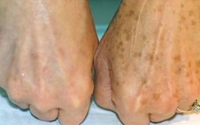 Старчески петна по кожата