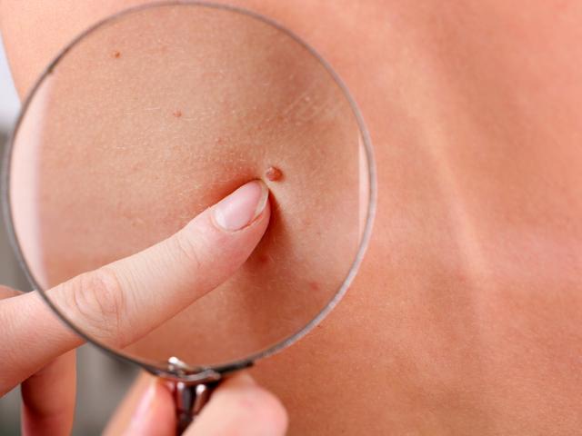 Рак на кожата при хората