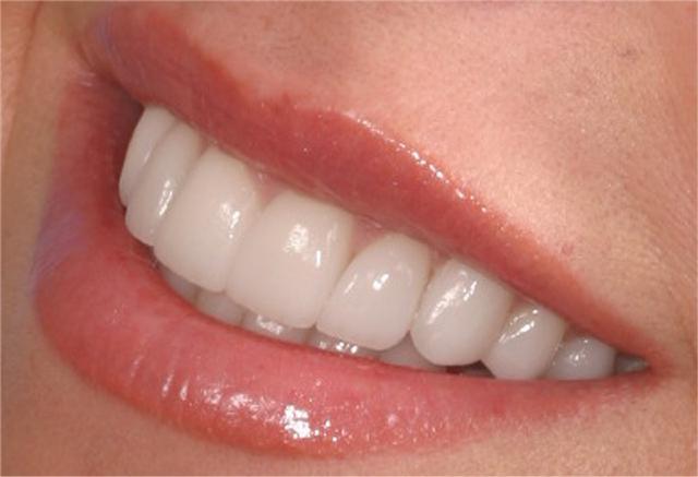 Brilliant smile за красиви и бели зъби