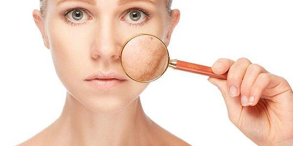 Как да се грижим за кожата според кръвната ни група