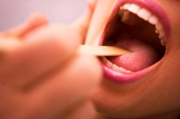 Гнойна ангина - симптоми и лечение