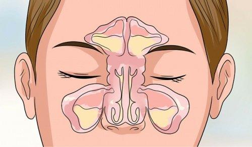 Отпушване на запушен нос - лечение